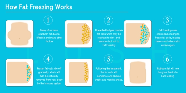 fat-freezing-process-web
