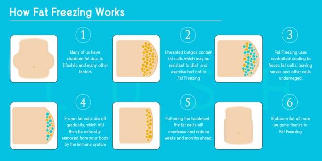 fat-freezing-process-web